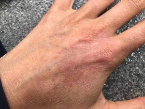 healing-eczema-naturally-heailnlg-eczema-the-natural-way